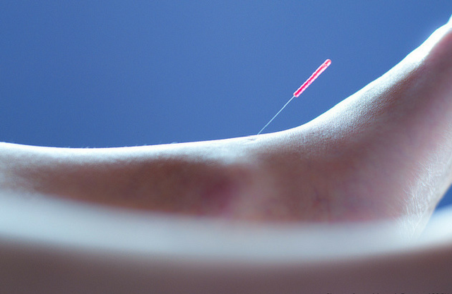 how acupuncture works propel phyiotherapy