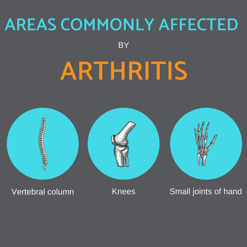 Areas commonly affected by arthritis Propel Physiotherapy