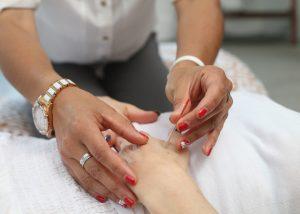 Acupuncture Etobicoke Propel Physiotherapy Toronto