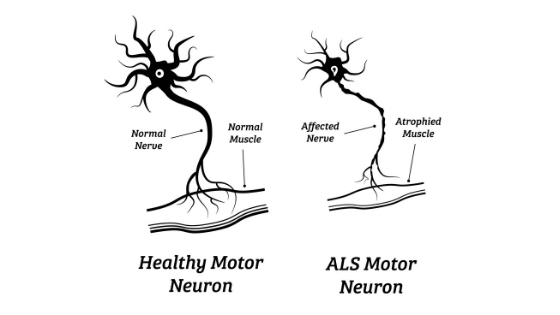 ALS symptoms muscle atrophy and nerve damage Propel Physiotherapy Etobicoke Physiotherapy Pickering