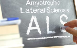Physiotherapy Treatment for ALS Symptoms Propel Physiotherapy Etobicoke Physiotherapy Pickering