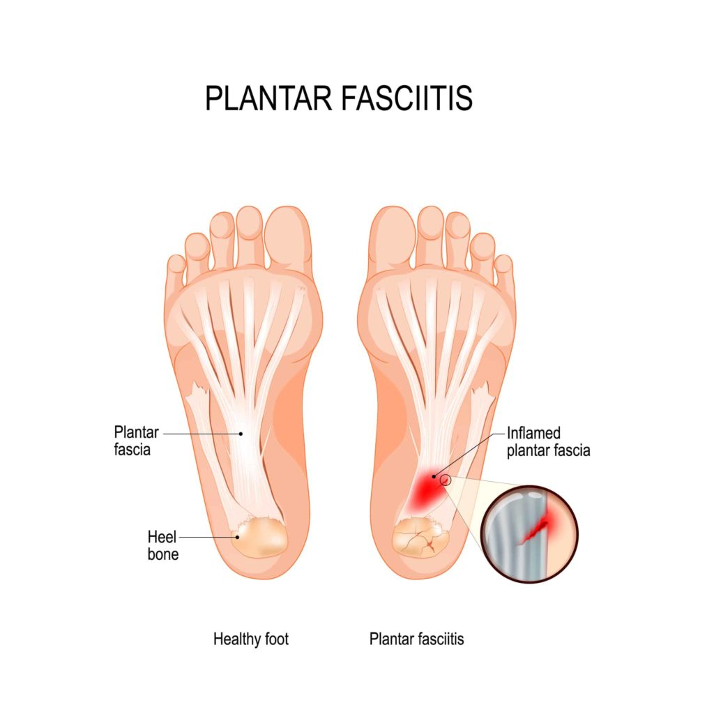 plantar fasciitis diagram inflamed plantar fascia propel physiotherapy shockwave therapy custom orthotics