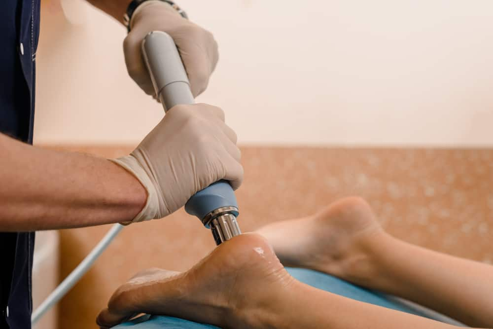 shockwave therapy for plantar fasciitis Propel Physiotherapy