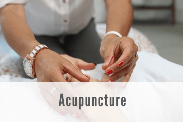acupuncture Propel Physiotherapy