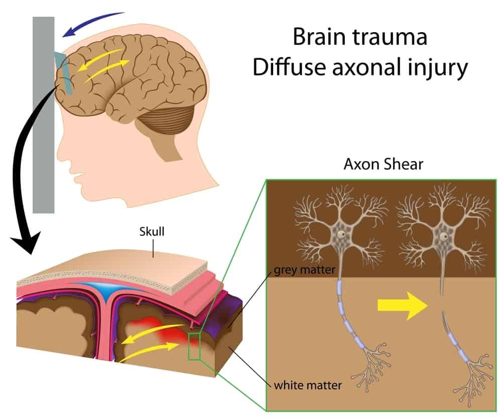 brain trauma diffuse axonal brain injury Propel Physiotherapy