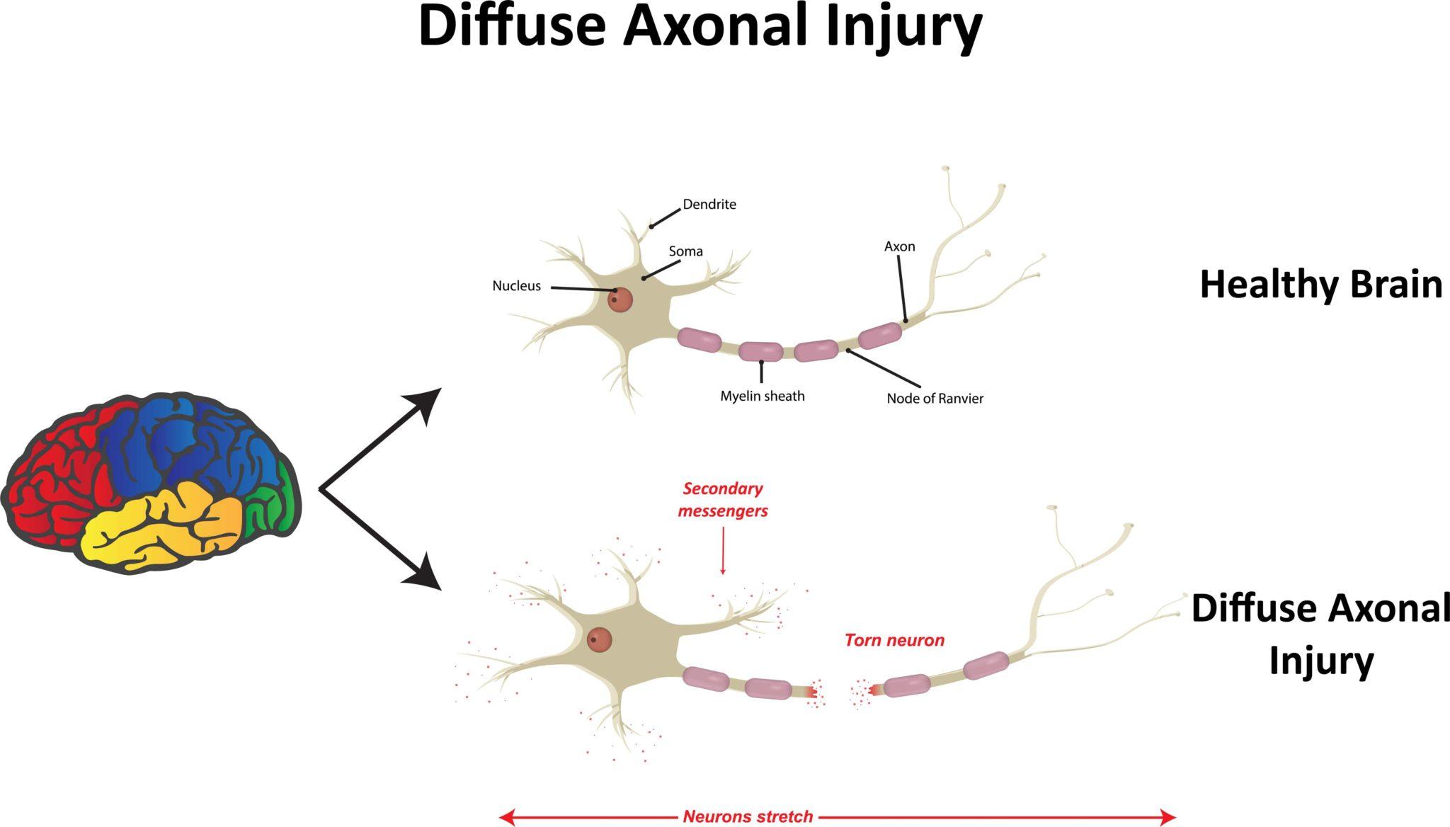 healthy-brain-vs-diffuse-axonal-brain-injury-propel ...