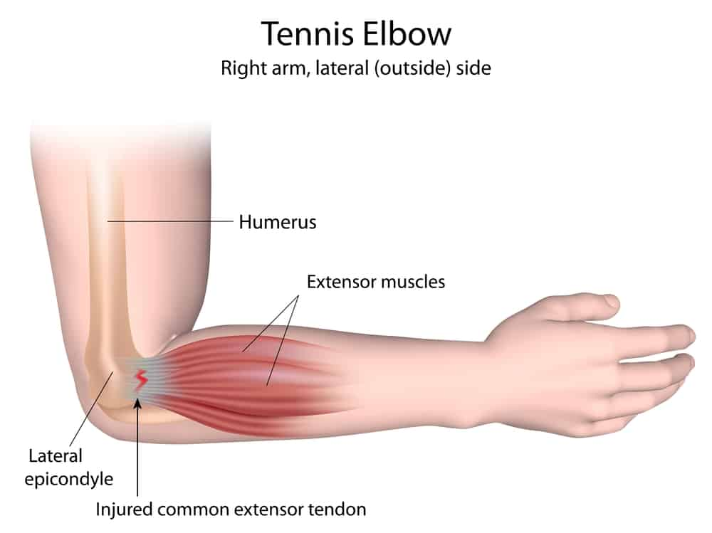 shockwave therapy lateral epicondylitis tennis elbow treatment Propel Physiotherapy