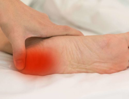 Plantar Fasciitis Pain Management