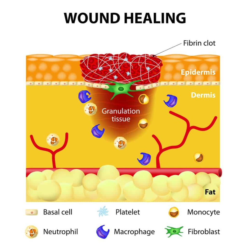 wound healing acupuncture for scar tissue treatment Propel Physiotherapy