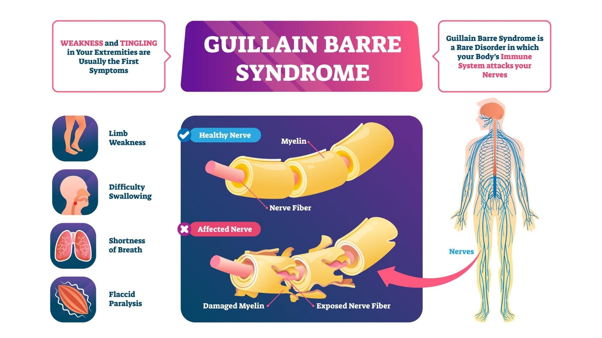 guillain barre syndrome treatment propel physiotherapy