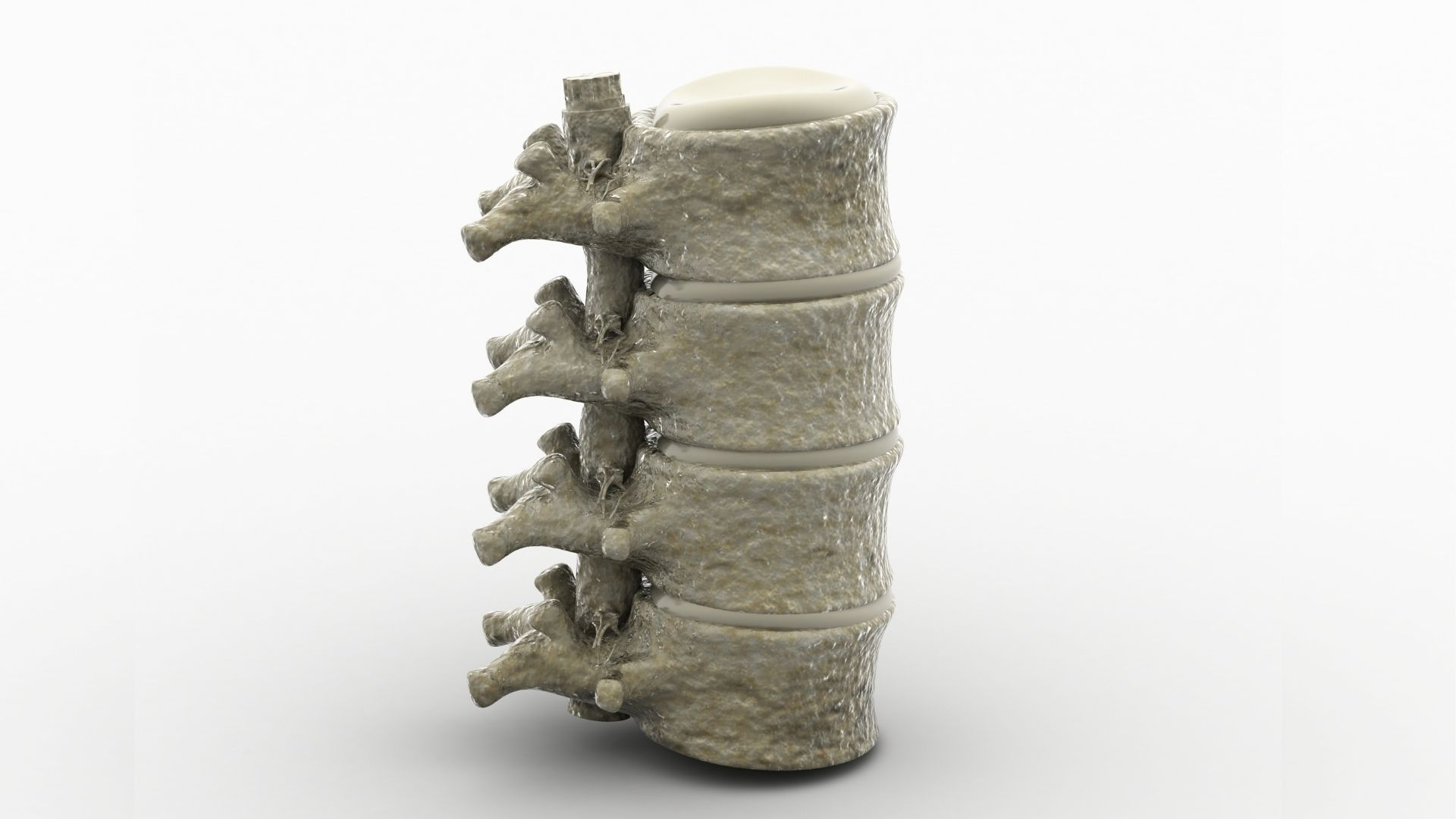transverse myelitis spinal cord section propel physiotherapy