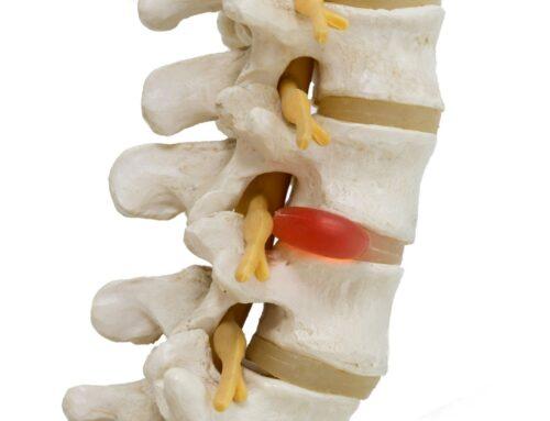 Discectomy: Purpose, Post-Operative Pain Management & Rehabilitation